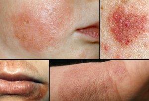penyakit eczema