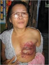 sembuh-kanker-payudara